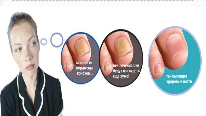 Как вылечить каким лекарством грибок ногтя на ноге