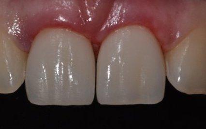 Види накладок на зуби