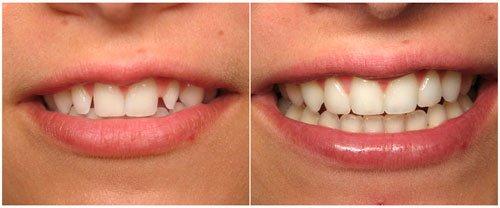 виниры на зубы цена ростов на дону