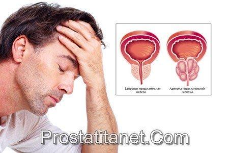 Лечении хронического конгестивного простатита