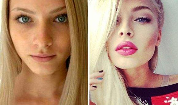 Член до и после увеличения губ