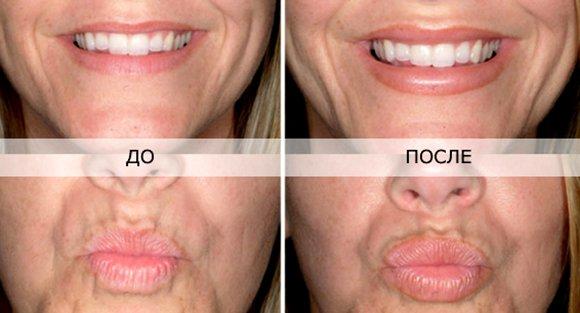 Сколько стоит гиалуроновая кислота в губы москва