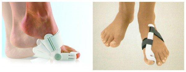 Как убрать косточку на ноге большого пальца в домашних условиях 94