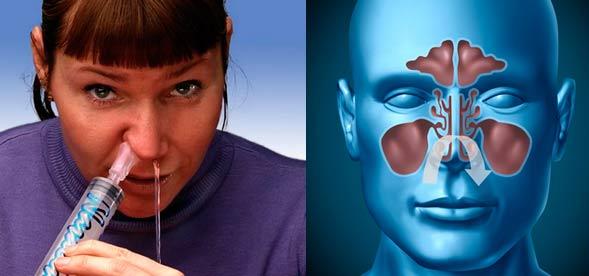 Как правильно промыть пазухи носа