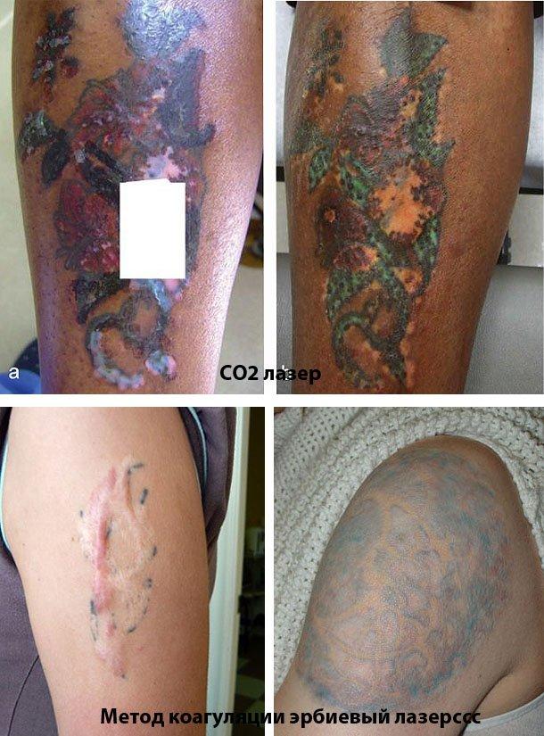 Удаляем татуировку в домашних условиях 542