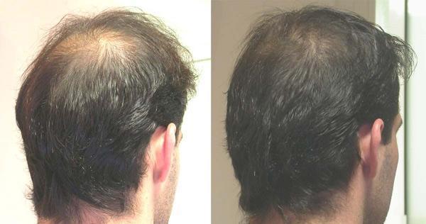 Мезотерапия волос цена до и после