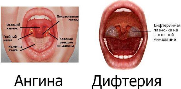 У ребенка болит горло - какие лекарства применять?