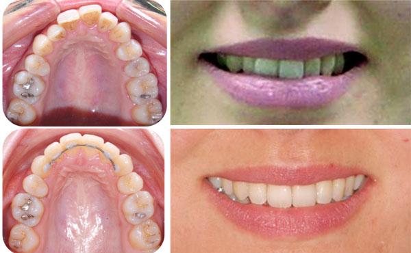 Удаляют ли зубы мудрости перед установкой брекетов