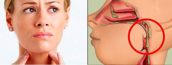 Чем снять заложенность носа в домашних условиях