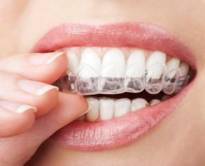 Методи професійного відбілювання зубів  624f09018aa55