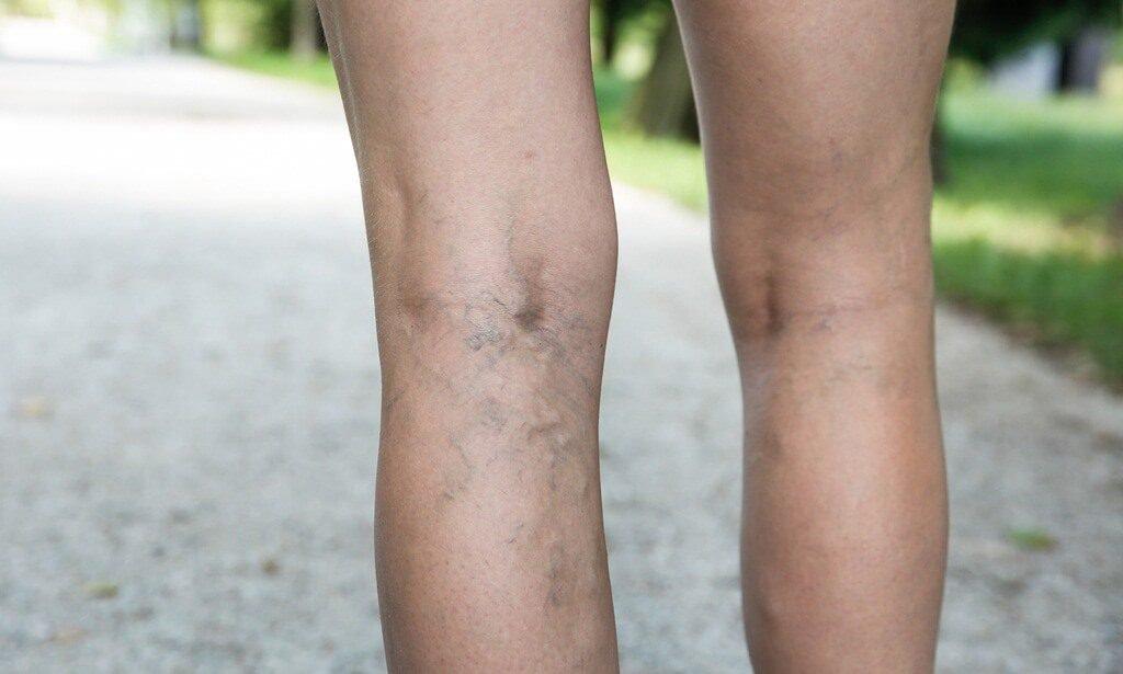 Варикоз вен на ногах причины