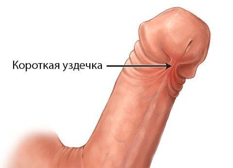 Обл зання на статевому член